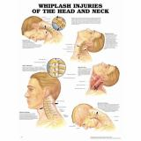 Whiplash Injuries of the Head and Neck Anatomical Chart 9781587796975